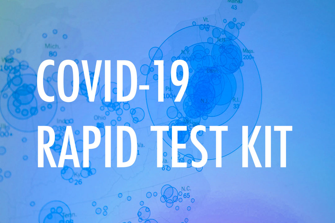 Makerere Innovated COVID Rapid Testing Kits Expected in June